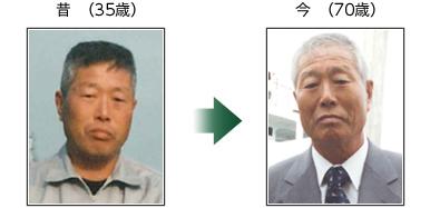 昔 (35歳) 今(70歳)